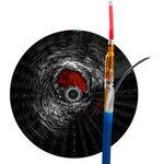 超声波检查导管 / 血管