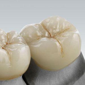 玻璃陶瓷牙科材料