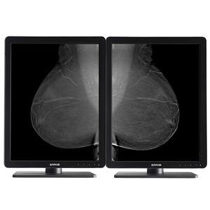 诊断显示器 / 乳腺造影 / 用于放射学 / 21.3