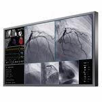 手术室显示器 / 医学成像 / 4K分辨率 / 液晶